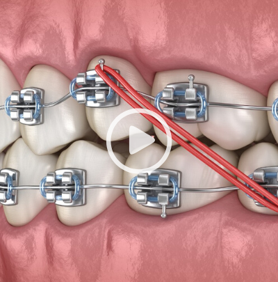 Caring for Your Braces During Covid-19 Part 1- Wearing Rubber Bands