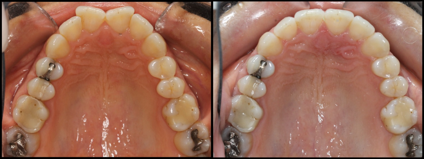 Butterfly incisors fixed with invisalign
