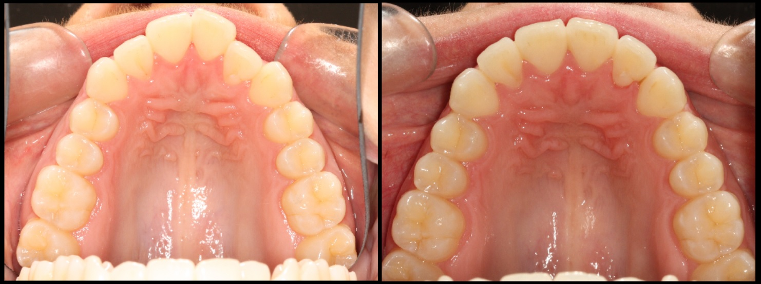 Alignment and arch shape of upper teeth from clear aligners
