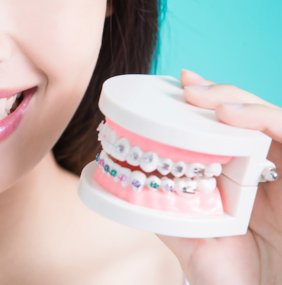 Braces vs Clear Aligners