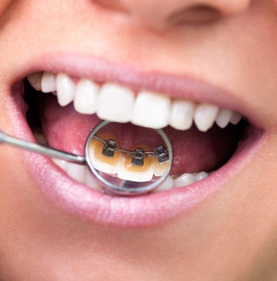 Braces that Work from Behind the Teeth (Lingual Braces)