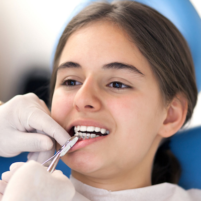 How Long Will My Orthodontic Treatment Take?