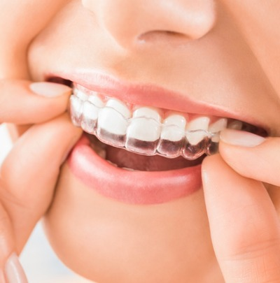 Keeping your Teeth Straight After Orthodontics