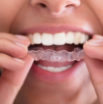 Will I Need to Wear a Retainer After Braces? Guide to Permanent Retainers