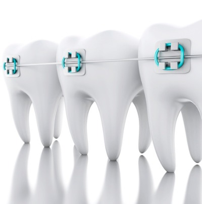 Broken Braces? What to do if a Bracket or Wire Breaks (Don't Panic!)