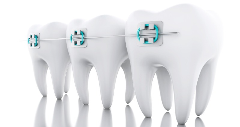 Broken Braces? What to do if a Bracket or Wire Breaks (Don't