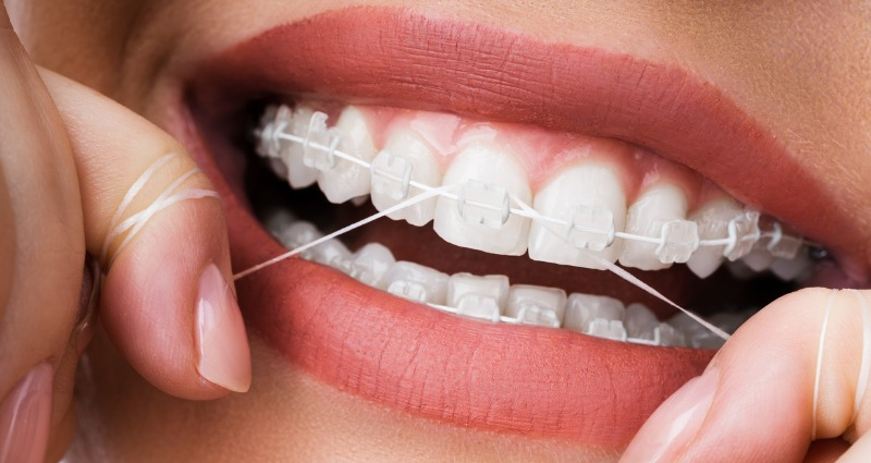 Female with orthodontic braces flossing