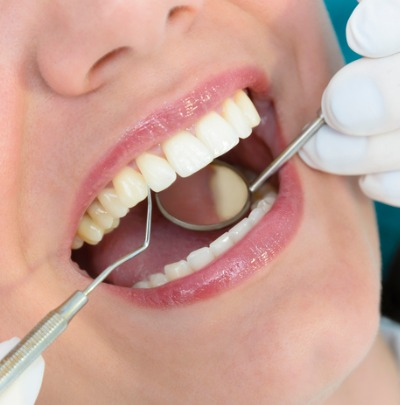 What is Gingivitis? Causes, Symptoms and Treatment