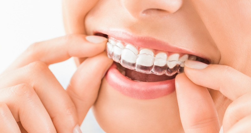 Lady smiling holding her orthodontic retainer, this allows for teeth to remain straight