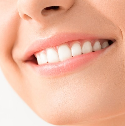 How to Fix an Overbite with Braces (How Long Does it Take?)